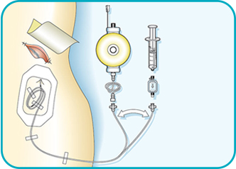 Wound Infiltration Catheter Kit